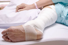 Leg surgery stapled wound in the hospital Stock Photos