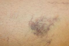 Leg with varicose veins Royalty Free Stock Image