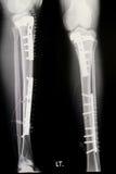 Leg x-rays image Royalty Free Stock Images