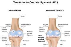Legamento crociato anteriore lacerato del giunto di ginocchio Fotografia Stock Libera da Diritti