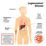 Legionärsjukdom eller legionellosis Arkivfoto