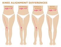 Legs and angles of the knees, different types of leg shapes. Normal varus and valgus. Legs and angles of the knees, different types of leg shapes. Front view royalty free illustration