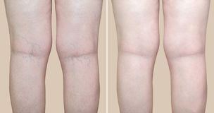 Legs of a woman with varicose veins and capillaries before and after medical treatment. Legs of a middle aged woman with varicose veins and capillaries before royalty free stock image
