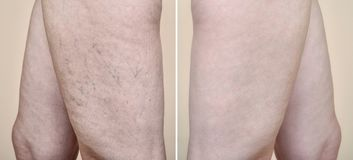 Legs of a woman with varicose veins and capillaries before and after medical treatment. Legs of a middle aged woman with varicose veins and capillaries before stock images