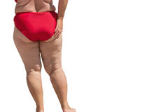 Legs of obese lady. Royalty Free Stock Image