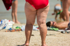 Legs of obese woman. Overweight person on the beach. Problem caused by poor nutrition. Excessive load on cardiovascular system Royalty Free Stock Photography