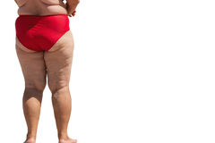 Legs of overweight person. stock photography