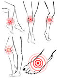 Legs pain. Vector illustration background Royalty Free Stock Photos