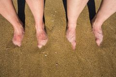 Legs on a sandy beach in Palma de Mallorca, Spain. 