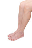 Legs with varicose veins Stock Image