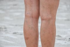 Legs of women, scars and varicose veins. royalty free stock images