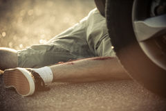 Legs of youth hit by car Royalty Free Stock Photo