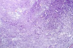 Leiomyoma, or fibroids, is a benign smooth muscle tumor. Light micrograph, photo under microscope stock photos