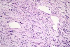 Leiomyosarcoma, a malignant cancerous smooth muscle tumor. Light micrograph, photo under microscope stock photo