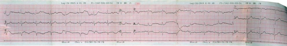 Leitura do coração do ecocardiograma (ECG, ECG) Imagens de Stock Royalty Free