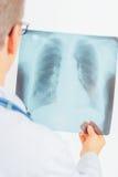 Lekarek spojrzenia przy promieniowanie rentgenowskie obrazkiem obraz royalty free