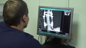 Lekarka patrzeje promieniowanie rentgenowskie w szpitalu zbiory