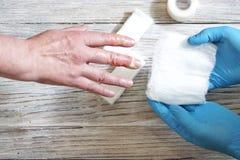 Lekarka stawia bandaż z medycyną na oparzenie palce kobiety ręka, wypadek w domu obrazy stock
