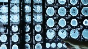 Lekarki studiują czaszka móżdżkowego Radiologicznego film dla analizy zbiory wideo