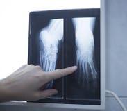 Lekarz medycyny wskazuje przy radiograph promieniowania rentgenowskiego wizerunkiem Zdjęcia Stock