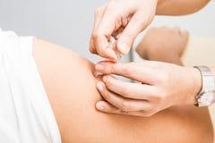 Lekarza medycyny wstrzykiwania szczepionka w rękę pacjent Zdjęcie Stock