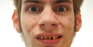 Lelijke mens die met bochtige gele tanden glimlacht Stock Afbeeldingen