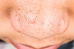 Lelijke pukkels, acne, zit en meeëters op de neus van een tiener royalty-vrije stock foto