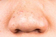 Lelijke pukkels, acne, zit en meeëters op de neus van een tiener stock afbeeldingen
