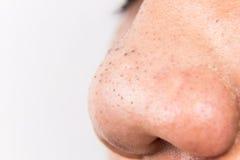 Lelijke pukkels, acne, zit en meeëters op de neus van een tiener stock fotografie