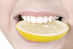 Lemon in a teeth Stock Images
