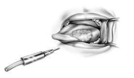 Lengua - tratamiento del laser del cáncer Fotos de archivo libres de regalías