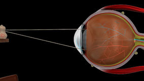 Lente de ojo de la miopía ilustración del vector