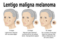 Lentigo maligna melanoma vector illustration