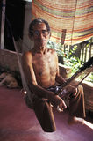 Leprosy patient in Brazil. Royalty Free Stock Image