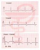 Les électrocardiogrammes avec le signe médical Image stock