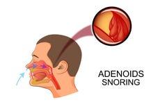 Les adénoïdes causent le ronflement illustration libre de droits