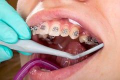 Les bagues dentaires se ferment  photos stock