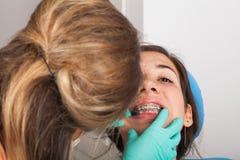 Les bagues dentaires se ferment  photos libres de droits