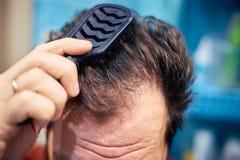 Les cheveux mal peignés sales des hommes tôt le matin image stock