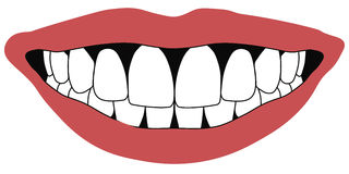 Les dents avant de lèvres ouvrent le concept blanc d'art dentaire de dents avant de bouche illustration libre de droits