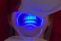 Les dents blanchissant l'émetteur à rayonnement ultraviolet de procédure blanchissent la fille de dents photographie stock libre de droits