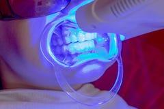 Les dents blanchissant l'?metteur ? rayonnement ultraviolet de proc?dure blanchissent la fille de dents image libre de droits