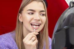 Les dents blanchissant la fille de proc?dure prennent la nuance des dents image libre de droits