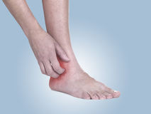 Les femmes rayent la cheville irritante avec la main. Image stock