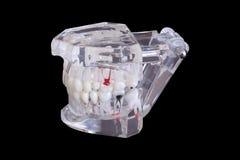 Les implants dentaires d'isolement de dent dans un moule d'une mâchoire humaine modèlent sur le fond noir avec le chemin de coupu Photographie stock
