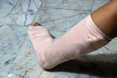 Les jambes et les pieds gauches soient dans la fonte de plâtre parce que brisés image libre de droits