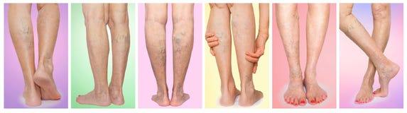Les jambes femelles avec l'araignée variqueuse de veines collage photos stock