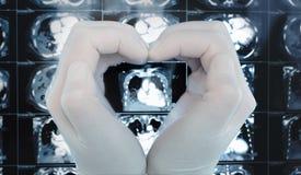Les mains effectuent un coeur embrassant l'image sur le balayage de CT photo stock