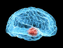 Les maladies dégénératives de cerveau, Parkinson, corps, visage illustration stock