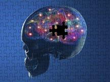 Les maladies dégénératives Parkinson, Alzheimer de cerveau Images stock